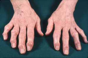 Patients with hand OA may present with Heberden's and/or Bouchard's nodes, which represent bony enlargement of the distal or proximal interaphalangeal joints, respectively. Such nodes are more common in women and patients with multiple joint OA.