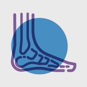 What is osteoarthritis? - Osteoarthritis Action Alliance